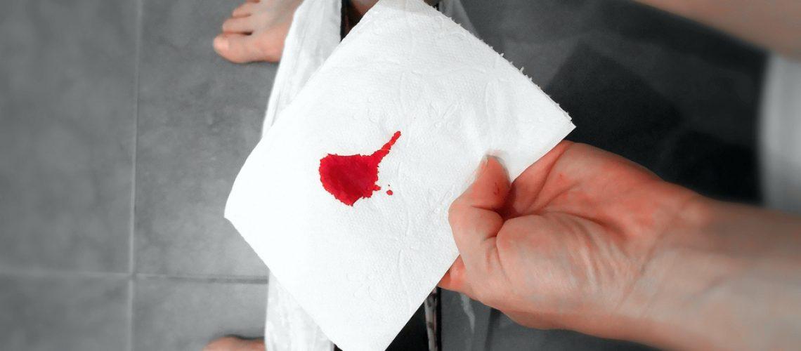 sangue nas fezes